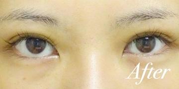 表参道スキンクリニックの目・二重整形の症例写真[アフター]