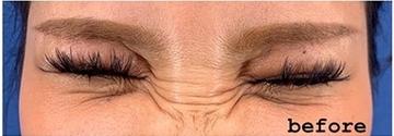 銀座長瀬クリニック 大阪院の顔の整形(輪郭・顎の整形)の症例写真[ビフォー]