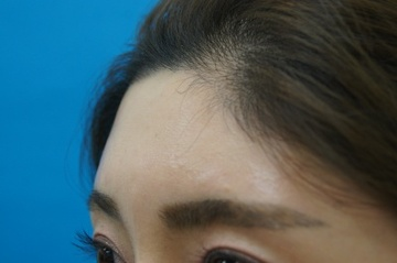 医療法人社団 愛美会の輪郭・顎の整形の症例写真[ビフォー]