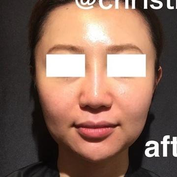 CHRISTINA clinic GINZA(クリスティーナクリニック銀座)の鼻の整形の症例写真[アフター]