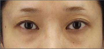 銀座長瀬クリニックの目・二重の整形の症例写真[ビフォー]