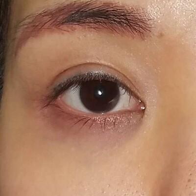 下眼瞼下制(切開によるタレ目形成)・目尻切開/術後1ヶ月の症例写真[ビフォー]