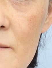 よだ形成外科クリニックのシミ治療(シミ取り)・肝斑・毛穴治療の症例写真[ビフォー]
