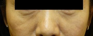 さやか美容クリニック・町田の目元の整形、くま治療の症例写真[ビフォー]