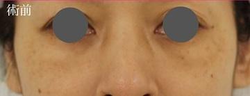 広島プルミエクリニックの目元整形・クマ治療の症例写真[ビフォー]