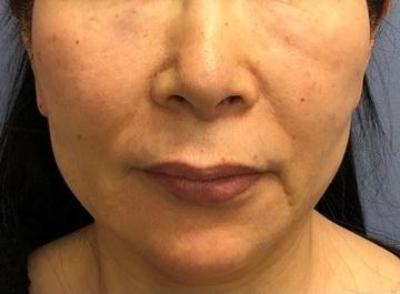 湘南美容クリニック 川崎院の顔のしわ・たるみの整形(リフトアップ手術)の症例写真[ビフォー]