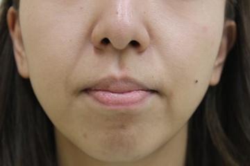 タウン形成外科クリニックの顔のしわ・たるみの整形の症例写真[ビフォー]