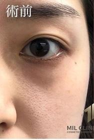 MIL CLINIC OSAKA(ミルクリニック)の目元整形・クマ治療の症例写真[ビフォー]