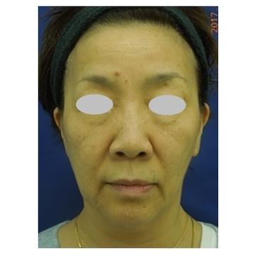 新宿ビューティークリニックの顔のしわ・たるみの整形(リフトアップ手術)の症例写真[ビフォー]