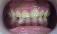 歯冠長延長術とセラミック法によるガミースマイル治療の症例写真の症例写真[ビフォー]