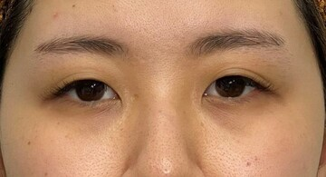 東京美容外科 青森院の目・二重整形の症例写真[ビフォー]
