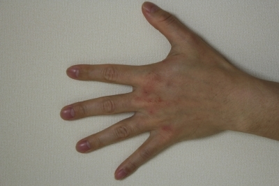 手背のエランセ注入の症例写真[アフター]