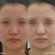 MIYAフェイスクリニックの症例写真