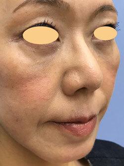目の下 湘南 たるみ の 外科 美容