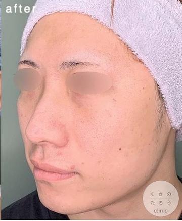 くさのたろうクリニックの鼻の整形の症例写真[アフター]