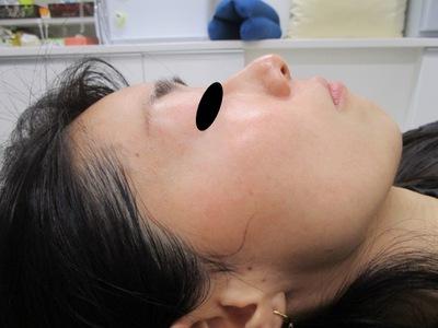 肝斑トーニング・クラリティフェイシャルコンビネーション[アフター]