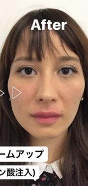 東郷美容形成外科福岡の口もと、唇の整形の症例写真[アフター]