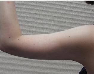 新宿ビューティークリニックの脂肪吸引の症例写真[アフター]