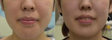 心斎橋コムロ美容外科クリニックの顔の整形(輪郭・顎の整形)の症例写真