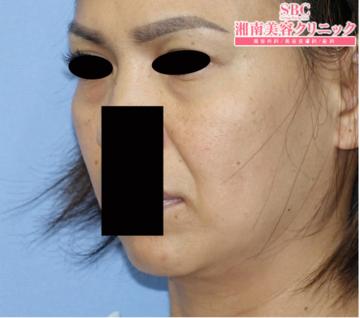 湘南美容クリニック大阪梅田院の顔のしわ・たるみの整形(リフトアップ手術)の症例写真[ビフォー]