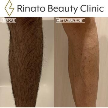 リナートビューティークリニック (RINATO BEAUTY CLINIC)の医療脱毛の症例写真