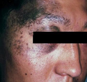 よだ形成外科クリニックのホクロ除去・あざ治療・イボ治療の症例写真[ビフォー]