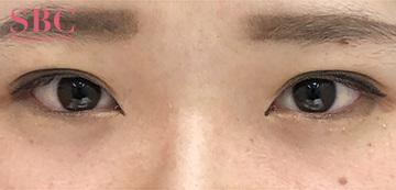 湘南美容クリニック高松院の目・二重の整形の症例写真[アフター]