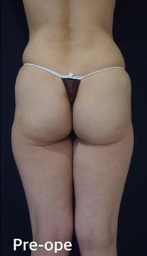 S.T style クリニック(エスティスタイルクリニック)の脂肪吸引の症例写真[ビフォー]