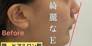 Kalon Clinic(カロンクリニック)の輪郭・顎の整形の症例写真[ビフォー]