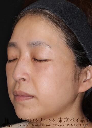 肌と歯のクリニック 東京ベイ幕張のシミ治療(シミ取り)・肝斑・毛穴治療の症例写真[アフター]
