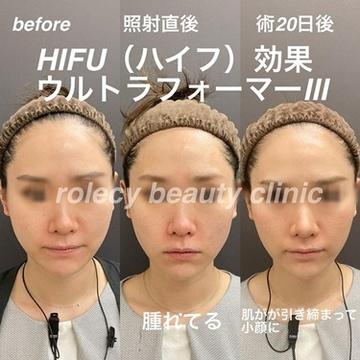 ロレシー美容クリニック 心斎橋駅前院のリフトアップレーザーの症例写真