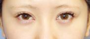 湘南美容クリニック池袋西口院の目・二重の整形の症例写真[アフター]
