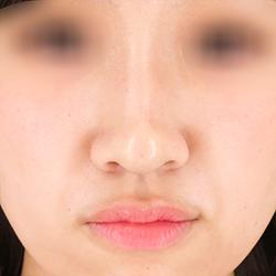 【横浜】柴田貴志/鼻先へのヒアルロン酸の症例(クレヴィエル)の症例写真[アフター]