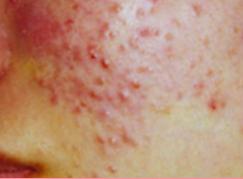 城本クリニックのニキビ治療・ニキビ跡の治療の症例写真[ビフォー]