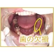 共立美容外科・歯科のインプラントの症例写真[ビフォー]