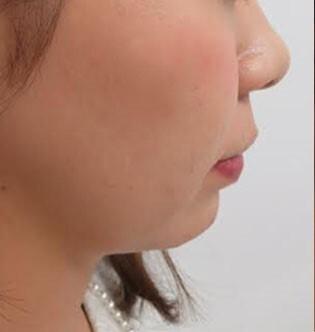 横顔美人を作るEラインフェイスの症例写真[ビフォー]