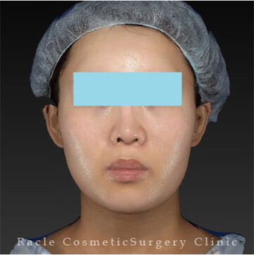 新宿ラクル美容外科クリニックの症例写真[アフター]