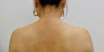 ルラ美容クリニック高田馬場院のその他の美容皮膚科治療の症例写真[ビフォー]