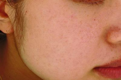 シミ治療5回セットコースの症例写真[アフター]