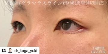 ルラ美容クリニックの目・二重整形の症例写真[アフター]
