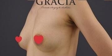 GRACIA clinic(グラシアクリニック)の豊胸・胸の整形の症例写真[アフター]
