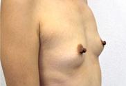 青山セレスクリニックの豊胸手術(胸の整形)の症例写真[ビフォー]