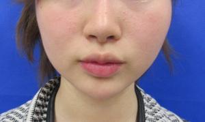 ガーデンクリニックの顔のしわ・たるみの整形(リフトアップ手術)の症例写真[アフター]