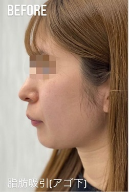 GLANZ CLINIC (グランツクリニック)の輪郭・顎の整形の症例写真[ビフォー]