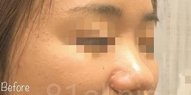 鼻筋・鼻先形成(糸)の症例写真[ビフォー]
