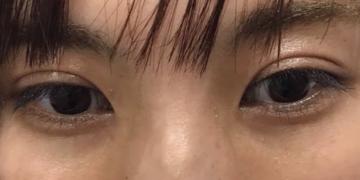 さっぽろ美容クリニック 本院の目元の整形、くま治療の症例写真[ビフォー]