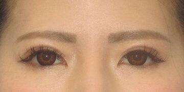 湘南美容クリニック高崎院の目・二重の整形の症例写真[アフター]