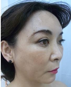 新宿ビューティークリニックの顔の整形(輪郭・顎の整形)の症例写真[アフター]
