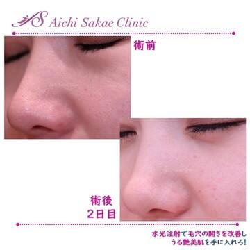 あいち栄クリニックのシミ治療(シミ取り)・肝斑・毛穴治療の症例写真