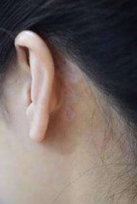 みずほクリニックのタトゥー除去の症例写真[アフター]